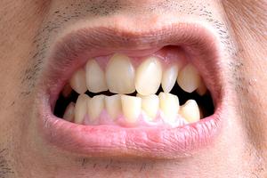 Патологии и заболевания, которые лечит врач ортодонт