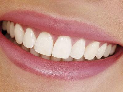 Как избавиться от пигментных пятен на зубах