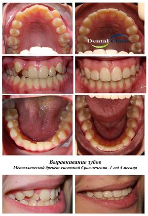 Выпрямляем зубы в домашних условиях