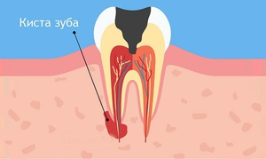Киста зуба